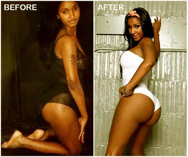 Image of Bernice Burgos plastic surgery before and after